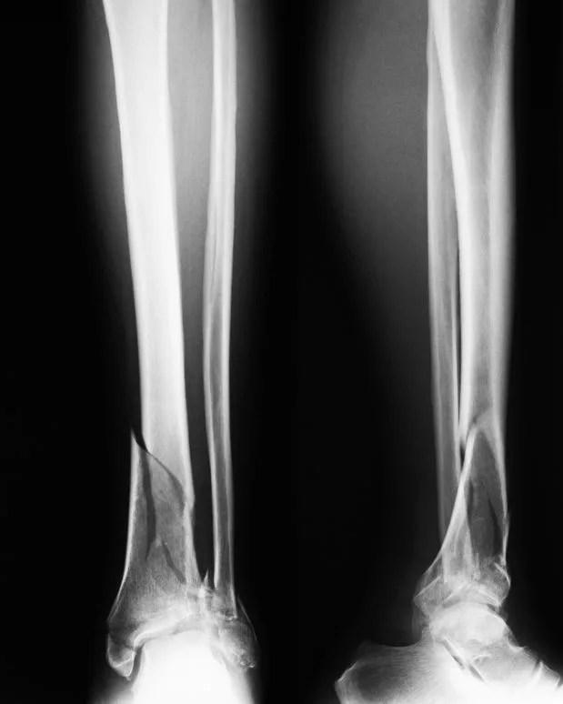 脛骨遠位端骨折1