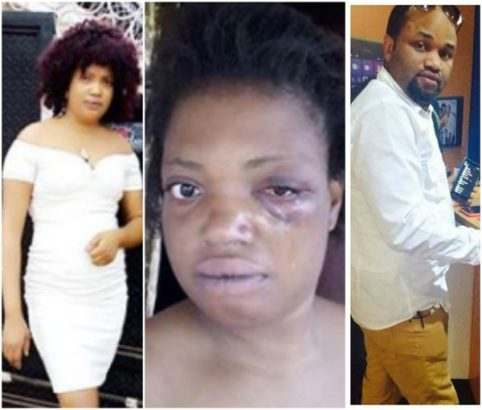 Wicked! Nigerian Lady Beaten Mercilessly By Brother-In-Law 1