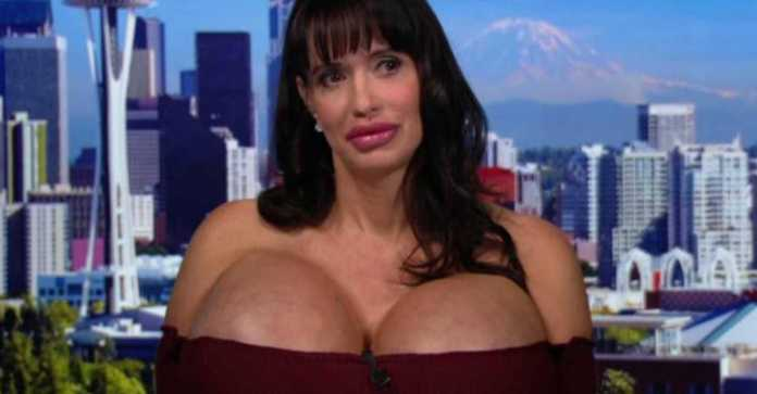 "Whooper! Meet Dolly, The Woman With A Massive 7344CC Breasts...Admits ""I Love Big Breasts"" 4"