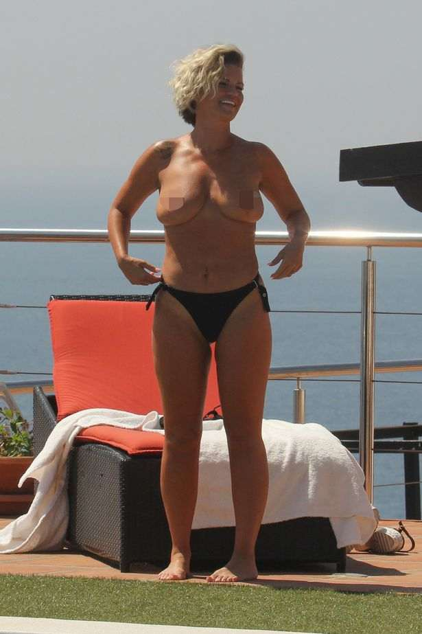 Still Need An Uplift! Former Singer Kerry Katona Sunbathes Topless On Holiday In Marbella 2