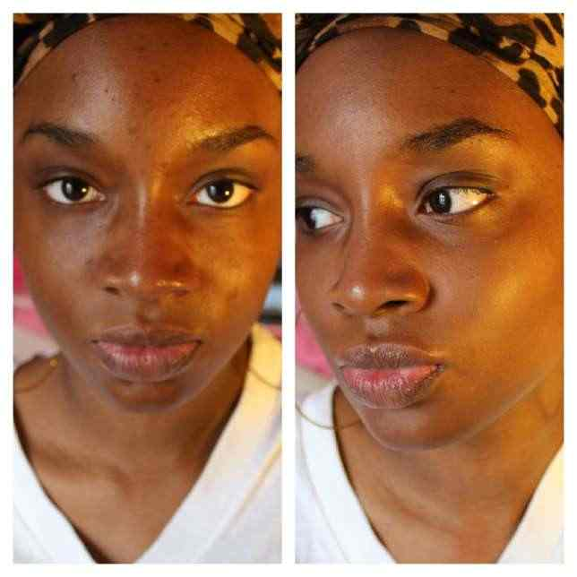 Beauty Guide: 6 Home Remedies Of Getting Rid Of Dark Spots On The Face 8