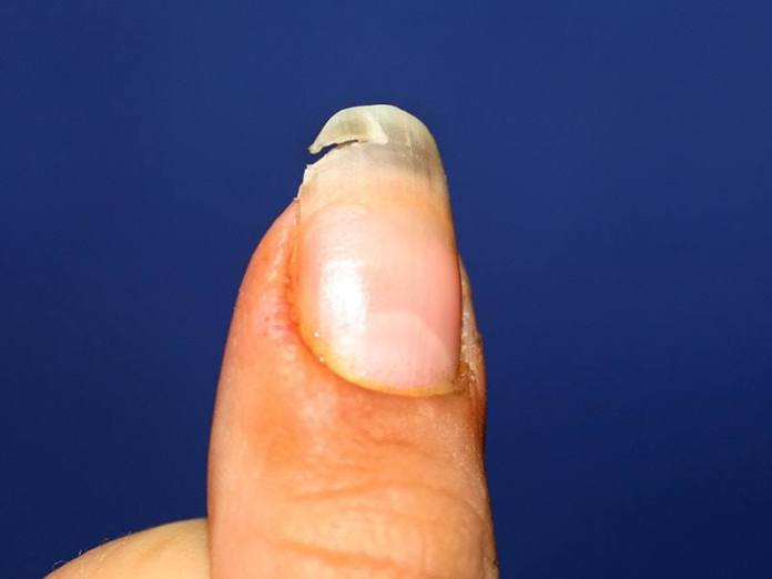 Beauty Guide: 5 Reasons For Having Frail And Dry Nails 7