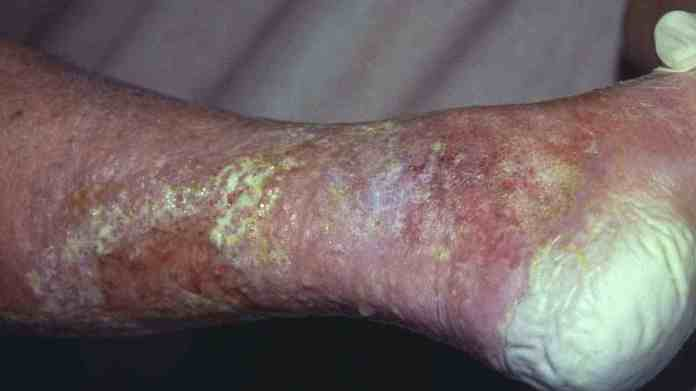 Beauty Trend: 5 Side Effects Of Skin Bleaching Or Lightening 6