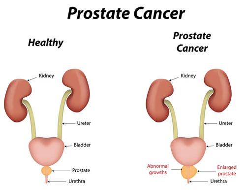 Symptoms Of Prostate Cancer koko tv ng 3