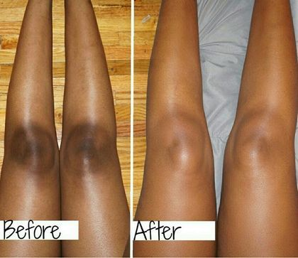 Beauty DIY: How To Get Rid Of Dark Knees With Sugar 2