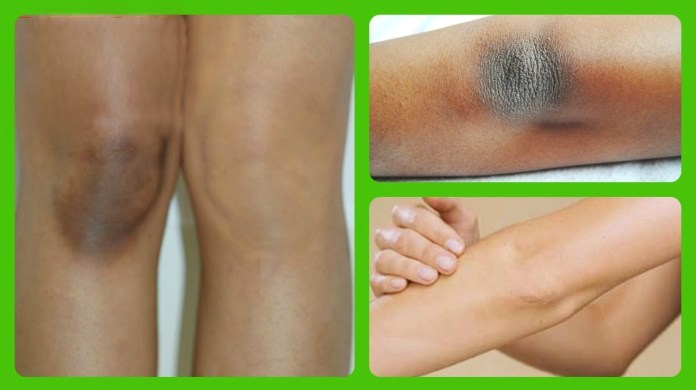 Beauty DIY: How To Get Rid Of Dark Knees With Sugar 1