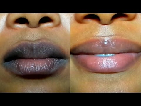 Beauty DIY: Three Effective Ways To Get Rid Of Dark Lips 1