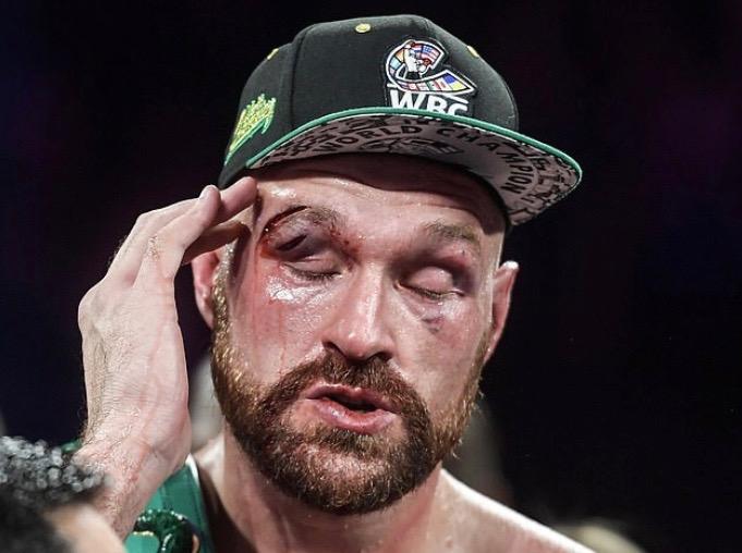 """He's A Bit Of A Waffler"", Anthony Joshua Blasts Tyson Fury"