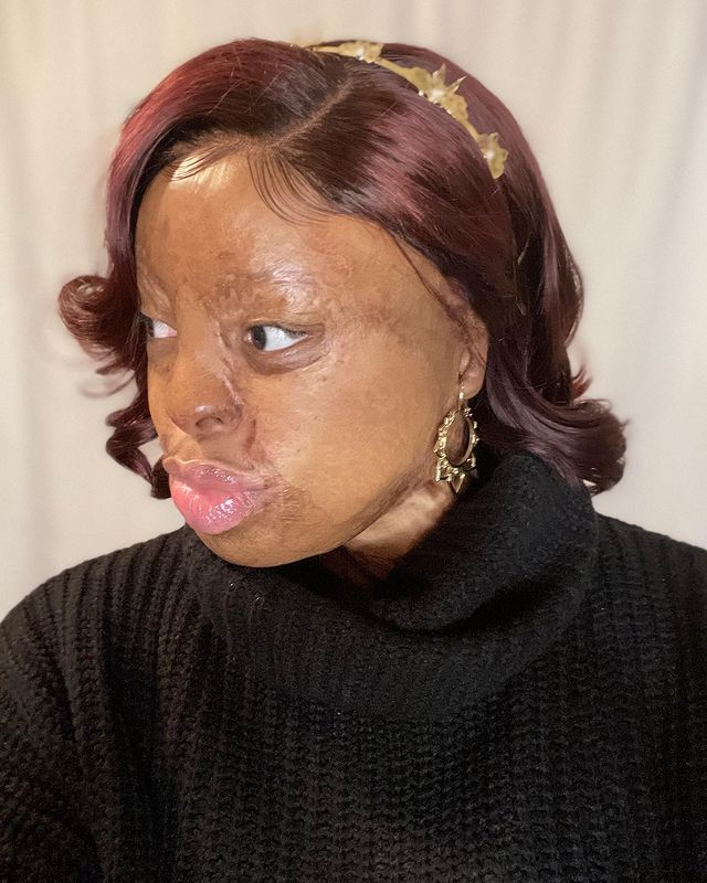 Kechi Okwuchi Opens Up On Being Able To Wear Earring Again After Loosing Her Earlobes To A Plane Crash