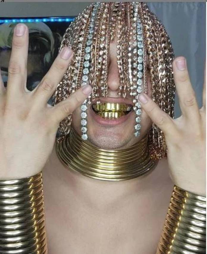 Dan Sur Gets Gold Chains Surgically Implanted Into His Scalp