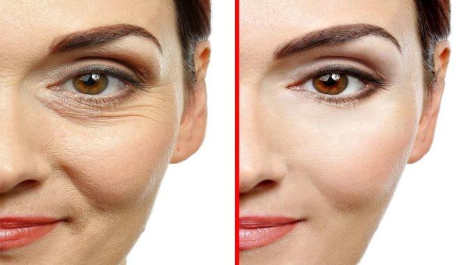 """Ось, як правильно використовувати маску з крохмалю, щоб """"скинути"""" 10 років з лиця! Ефект ботоксу за 15 хвилин"""