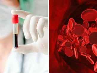 7 ознак того, що кров стала густою — перевіряємо себе самі