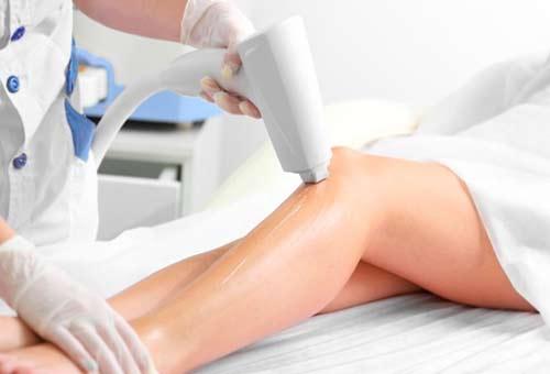 Гладкая кожа без лишних усилий: в чем особенность лазерной эпиляции