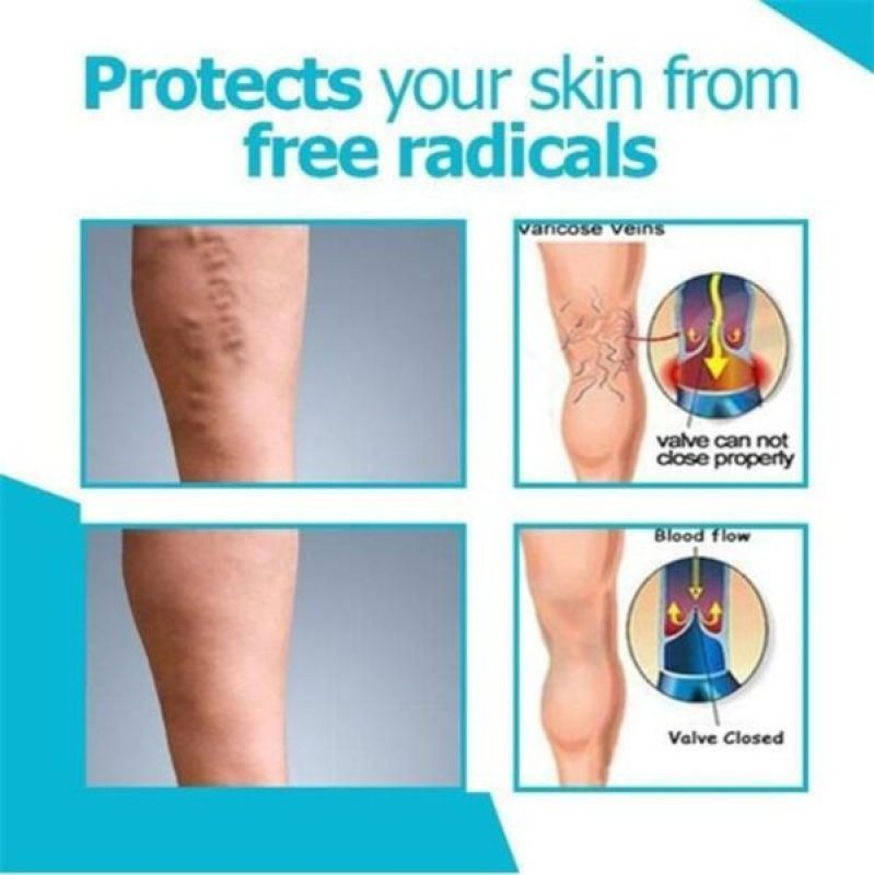 Varicose Veins Miracle Cream