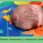 Лечение гемангиомы у маленьких детей