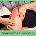 Артроз: симптомы и профилактика