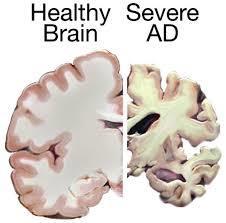 アルツハイマー型認知症とは