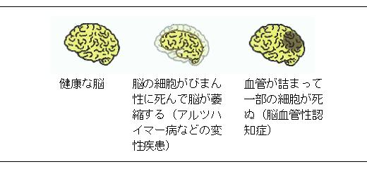 認知症とは