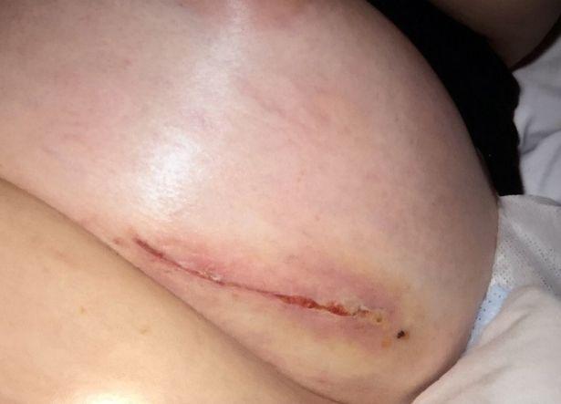 pay-dennie-lees-breast-implants_1017