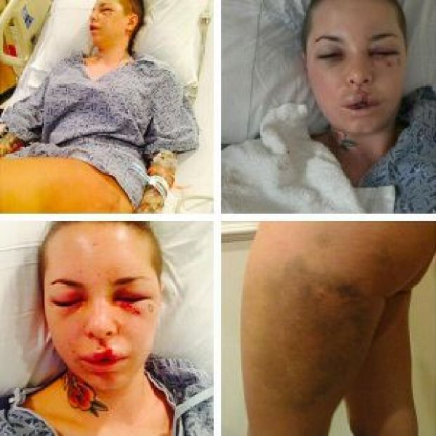 adult-movie-star-christine-mackinday-abuse-photos1