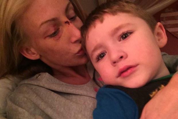 Crystal Bassette after her car accident, holding son Landon