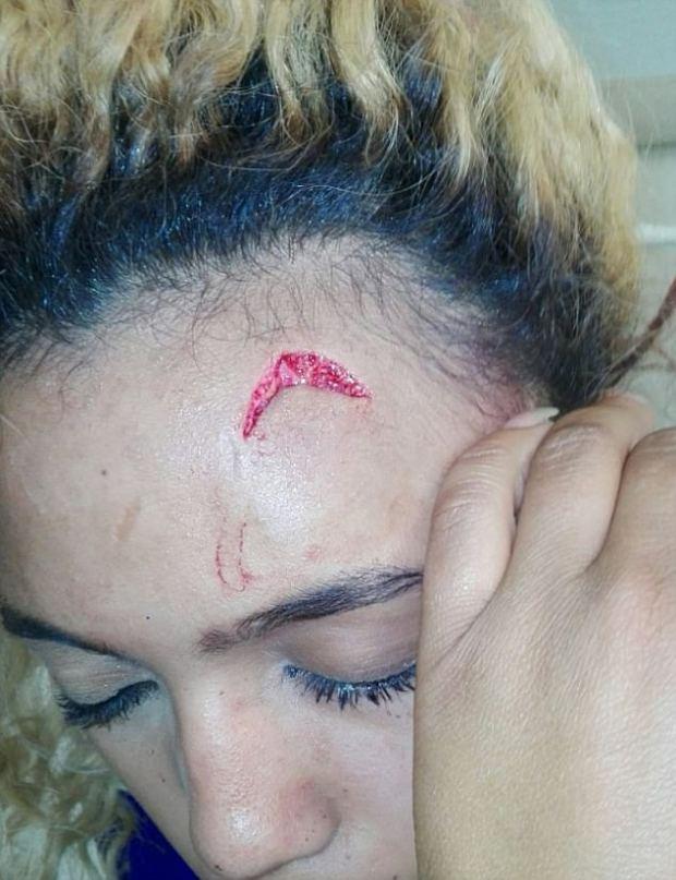 Gabriella Engels injuries 2
