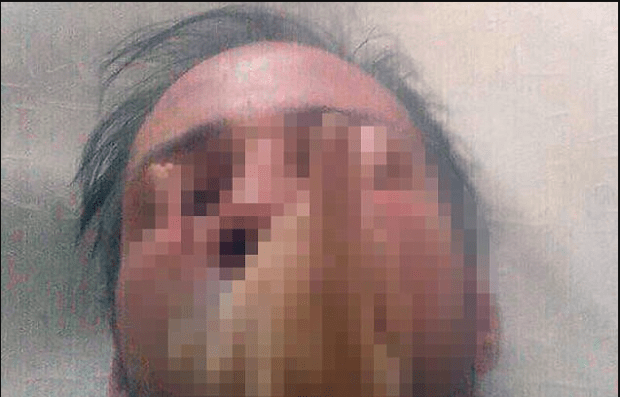 Photo of Dmitry Baksheev eating a human hand