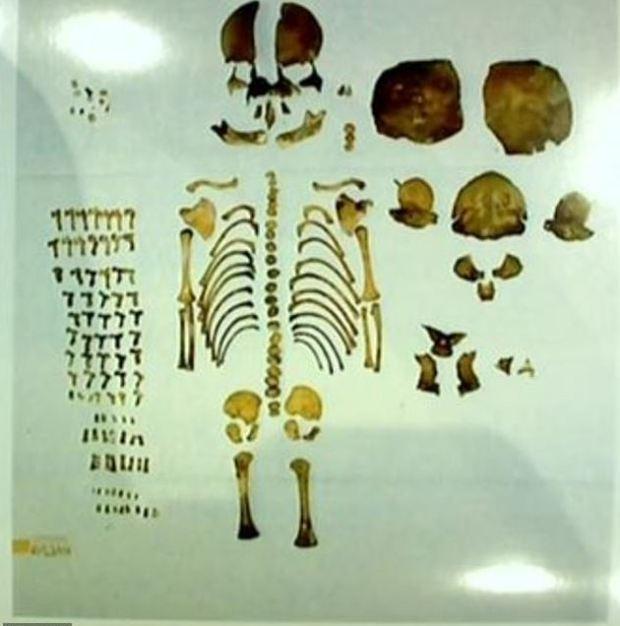 Skeleton of Brooke Skylar Richardson's baby 1