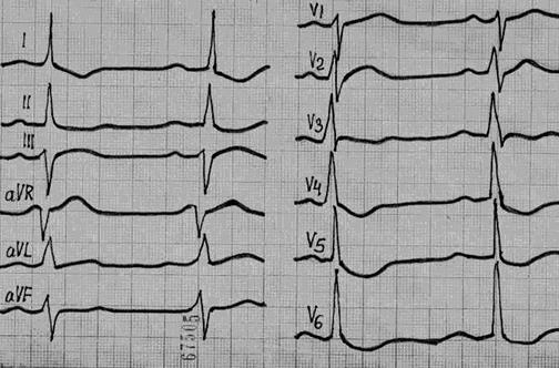 ekg pokytis esant hipertenzijai