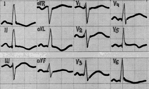 Kas yra veloergometrija (VEM) - Hipertenzija November