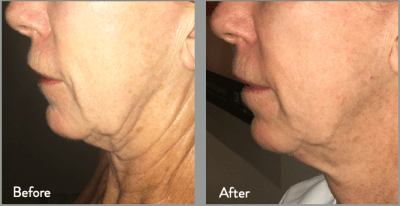 Before & After Neck