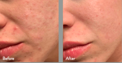 Before & After Resurfacing