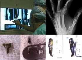 Инопланетные имплантаты: результаты исследования
