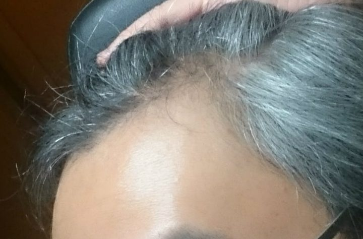 脱毛 プロペシア 初期