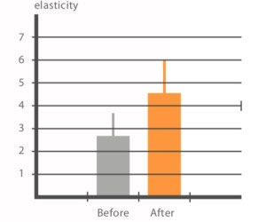 Carboxy Co2 und die Auswirkung auf die Elastizität der Haut