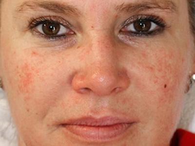 begeisterte kundinnen von kosmetik lee dank gesichtsbehandlung kosmetik studio basel