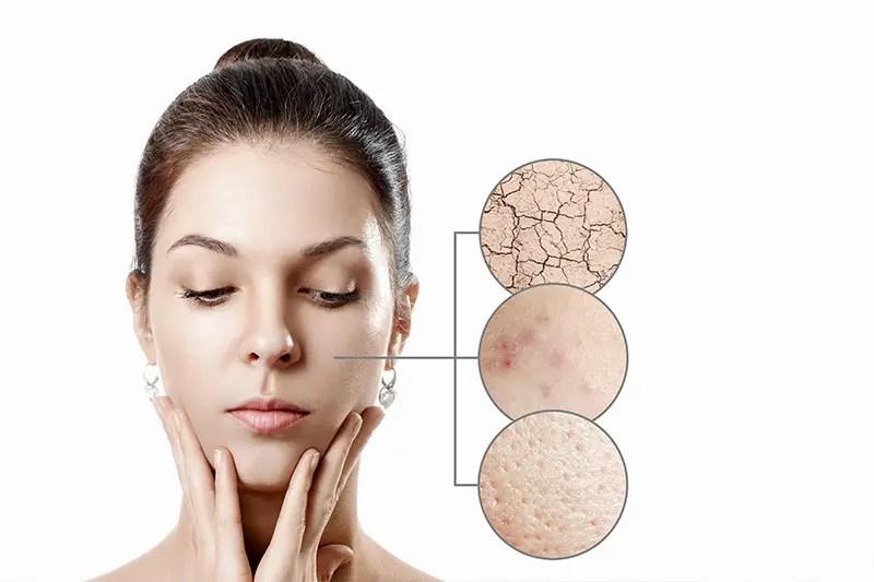 Weiterbildung Hautdiagnose Kosmetikschule Beautyworld