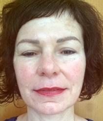 Lippenvergößerung Foto nachher Rottweil