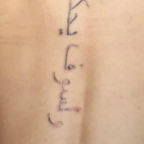 Tattoo lasern Rottweil Villingen-Schwenningen Albstadt-Ebingen