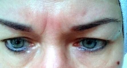 Aknebehandlung Microneedling Kosmetikbehandlung Rottweil Oberndorf