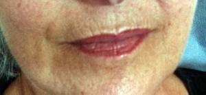 Lippenfältchen entfernen Rottweil und Oberndorf am Neckar