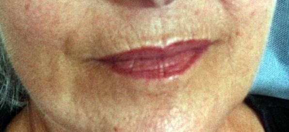 Botox Rottweil Microneedling gegen Dermaroller