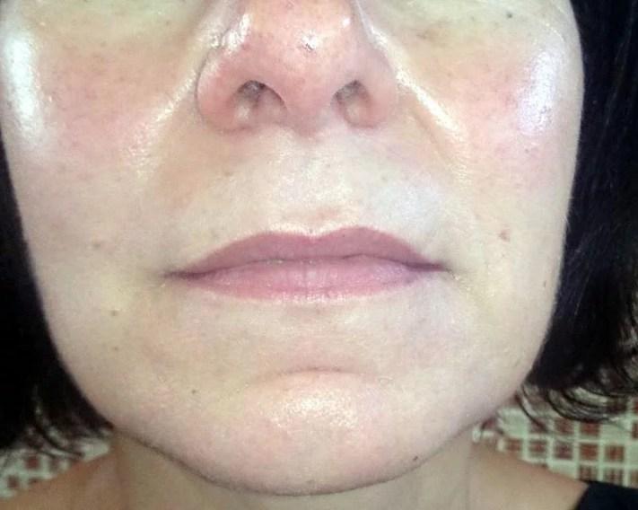 Lippenvergrößerung mit Permanent Make up
