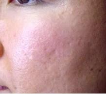 Kosmetikstudio Villingen Schwenningen akne behandlung