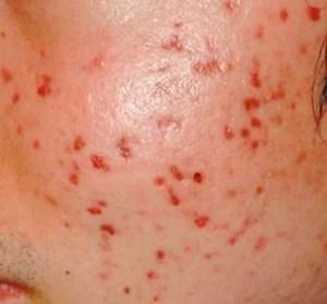 Akne und Neurodermitis geplagte Haut Villingen Schwenningen