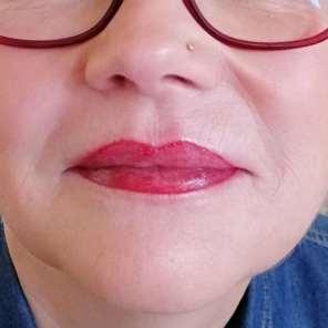 Lippenvergrößerung nachher. Die Lippenpigmentierung ist noch nicht verheilt, die Farbe noch ganz frisch.