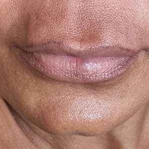 Lippe vorher
