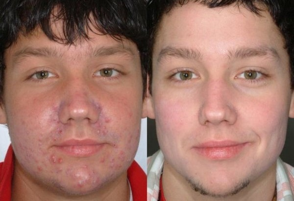 Darsonvalization can get rid of acne