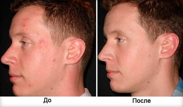 The skin after undergoing the course of procedures will become more elastic