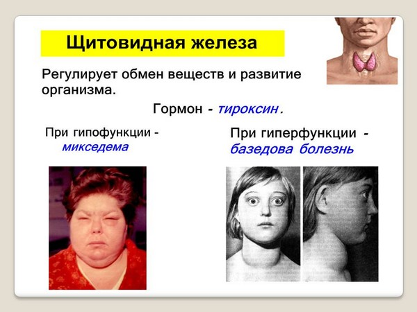Diseases of the thyroid gland - one of the contraindications to the procedure